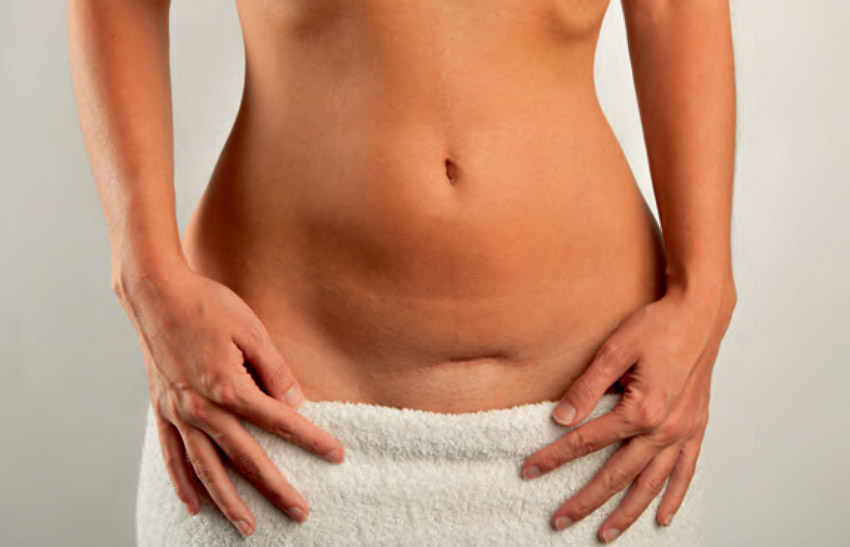 ovarian cyst in Mount Pleasant